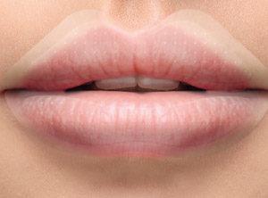 Labbra più carnose con il filler fai-da-te